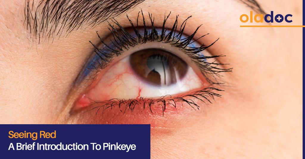 pinkeye treatment
