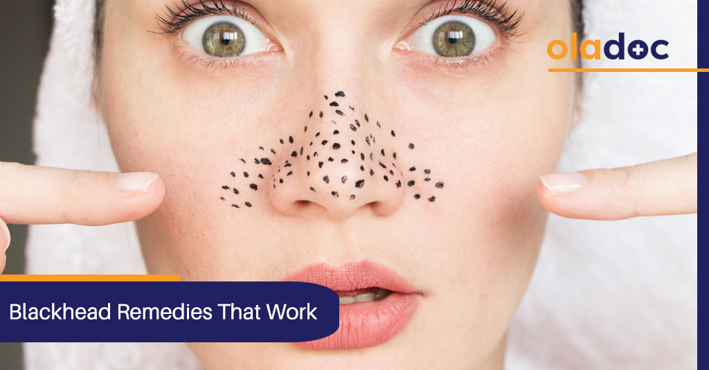 5 Simple Remedies to Get Rid of Blackheads