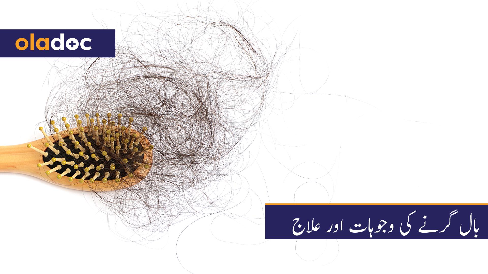 بال گرنے کی وجوہات اور علاج